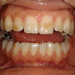 Beljenje zuba