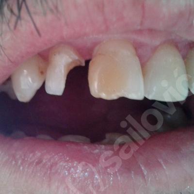 Konzervativna stomatologija 2