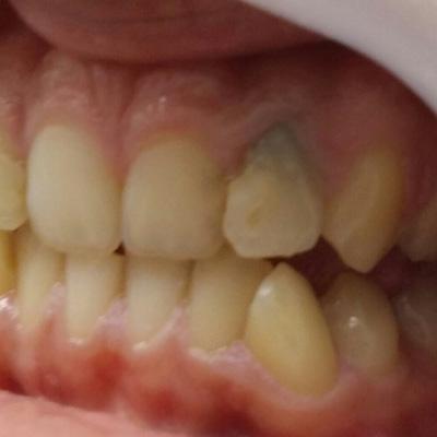 Konzervativna stomatologija 5